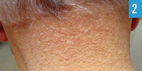 What is this Papular Eruption and Madarosis After Cardiac
