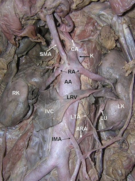 gonadal vein | Medical Pictures Info - Health Definitions